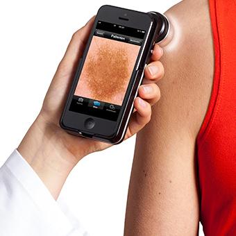 dermatoscopio para iphone