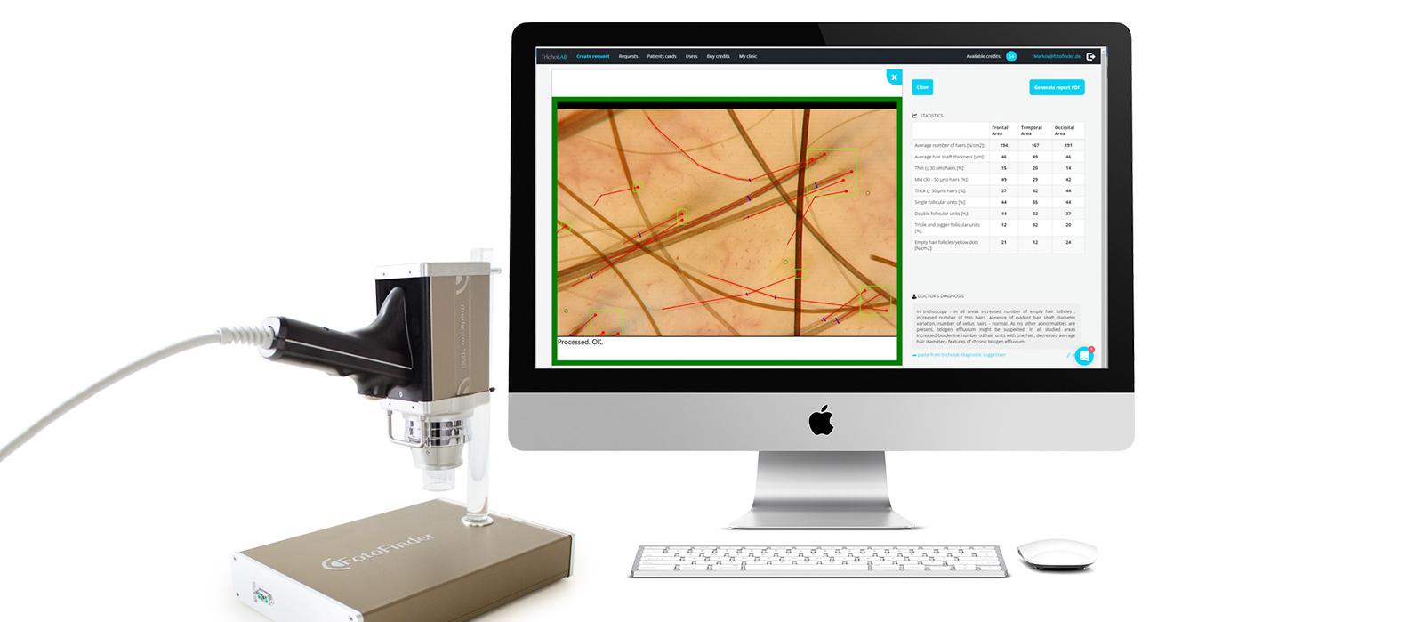 tecnología análisis capilar